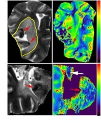 Correlation between XRF iron maps and MR imaging. Ischemic lesions are outlined.