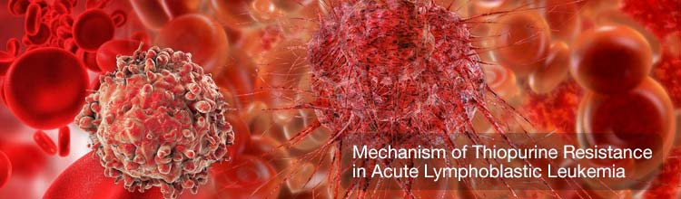 Mechanism of Thiopurine Resistance in Acute Lymphoblastic Leukemia