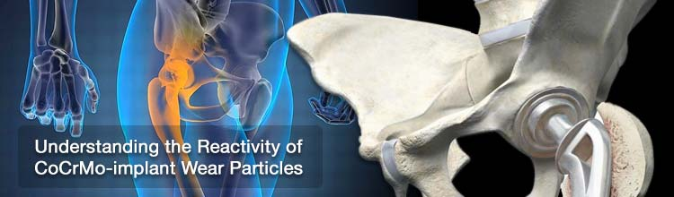 Understanding the Reactivity of CoCrMo-implant Wear Particles