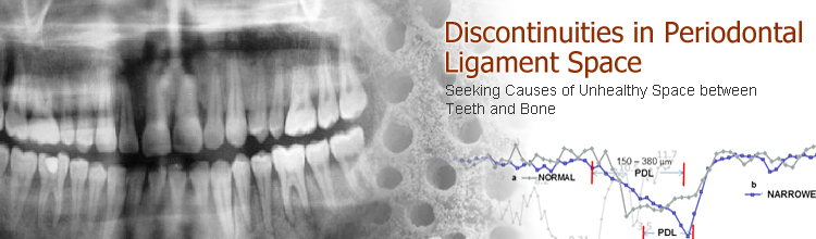 Discontinuities in Periodontal Ligament Space