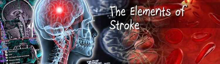 The Elements of Stroke