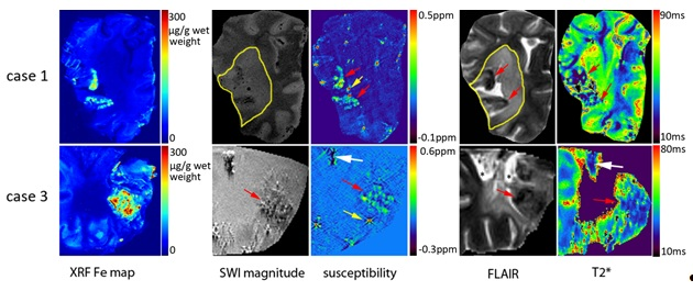 Figure 1. Correlation between XRF iron maps and MR imaging (SWI magnitude images (TE=18.5ms), susceptibility maps (TE=8.2ms), FLAIR and T2* maps) for cases 1 (hemorrhagic stroke) and 3 (ischemia. The white arrows indicate possible calcification. Iron in XRF maps co-localizes with higher susceptibility in susceptibility maps (red arrows show the high iron regions). The intense spots in the susceptibility map are artifacts caused by air bubbles (yellow arrows). Ischemic lesions are outlined in FLAIR images an